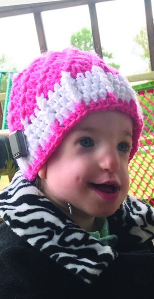 Anniston Claire Sanders was diagnosed with Treacher Collins Syndrome when she was just 24 hours old. Photo contributed.