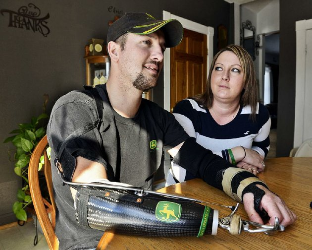 jamie-houdek-and-his-wife-lisa-of-little-falls-minn-talk-about-his-recovery-after-he-lost-his-right-hand-and-damaged-his-left-when-they-got-caught-in-a-corn-picker-on-the-familys-hobby-farm